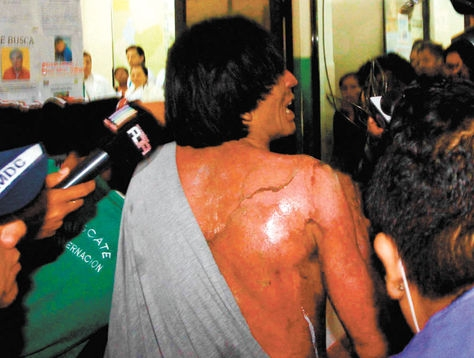 A prisoner burned in the fire at Palmasola jail